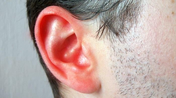 Remedios para el oído