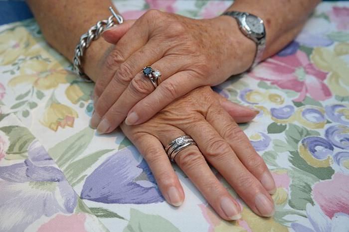 remedios rejuvenecer tus manos