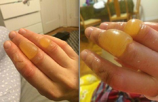 limón y sol: una combinación peligrosa