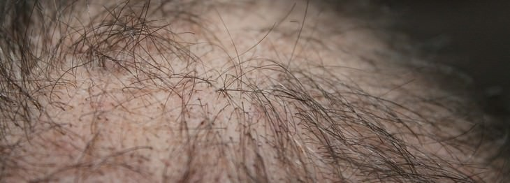 remdios romero cabello