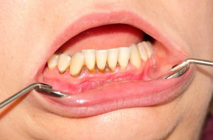 dañar dientes