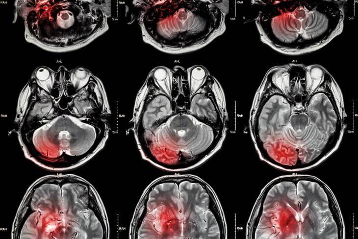 señales tumor cerebral