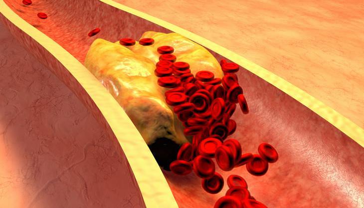 riesgo de sufrir un coágulo sangre