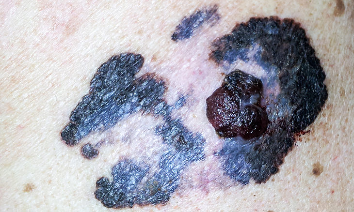 síntomas cáncer piel