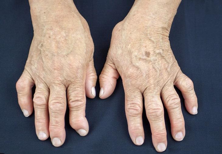 remedios artritis reumatoide
