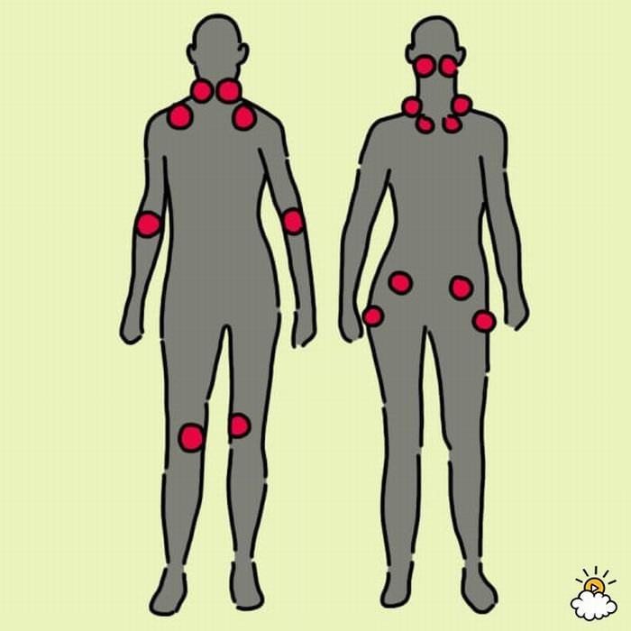 Síntomas y Tratamientos De La fibromialgia