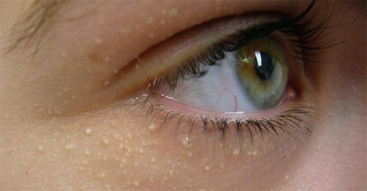 Granos transparentes en la cara