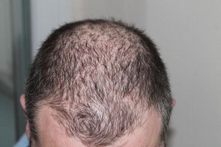 cebolla para prevenir caida cabello