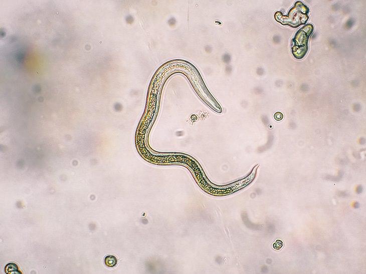 como eliminar los parasitos intestinales en adultos yahoo