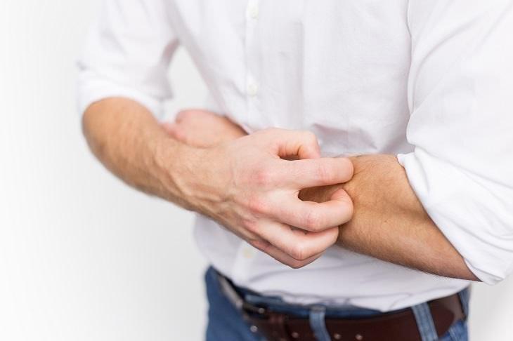 crema natural para eczemas