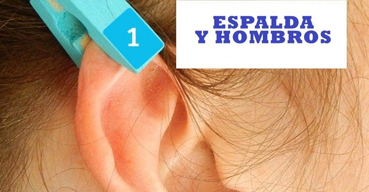 eflexología auricular con pinzas