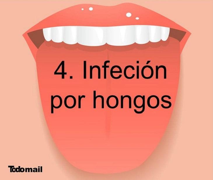 enfermedades lengua