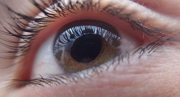 guía glaucoma