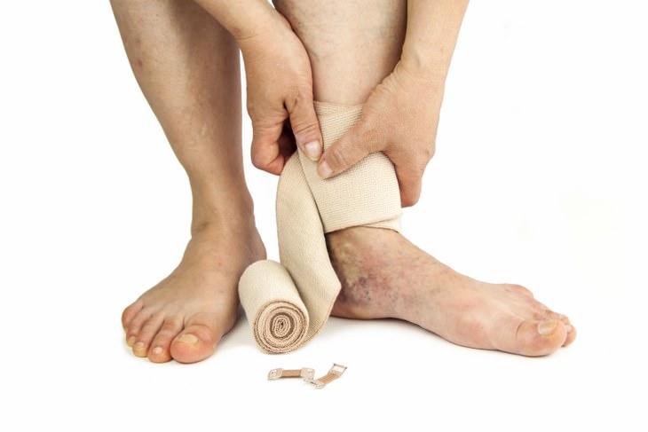 ¿Los coágulos de sangre en las piernas causan hematomas?