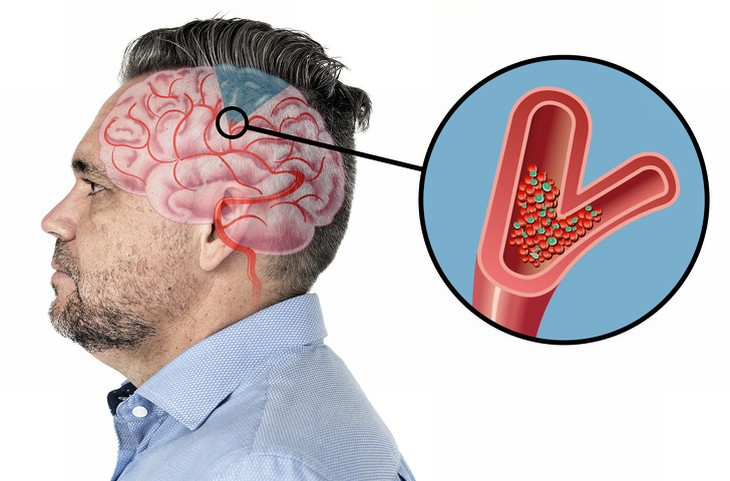 ataque cerebral