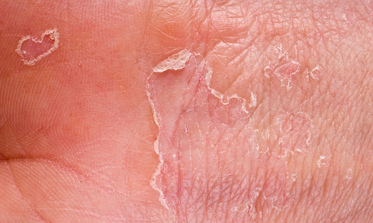 10 afecciones de la piel