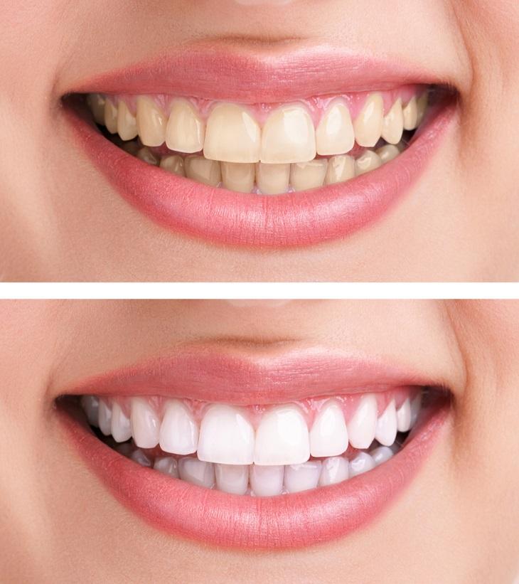remedios casero para blanquear los dientes
