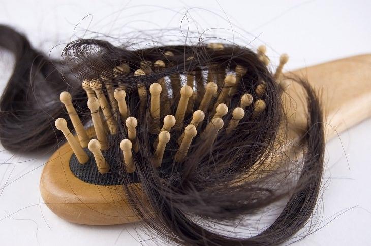guía: alopecia areata