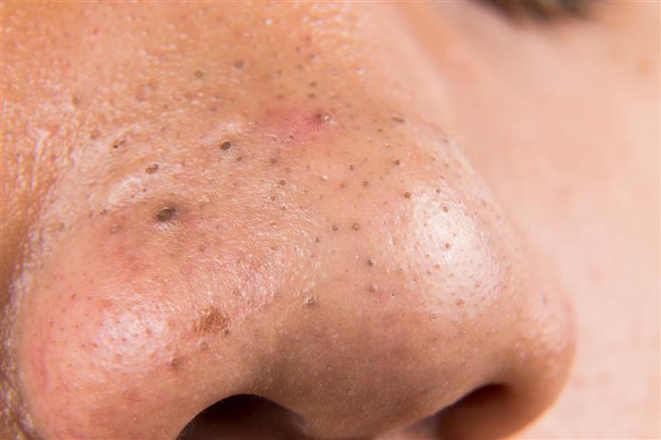 extraer puntos negros nariz