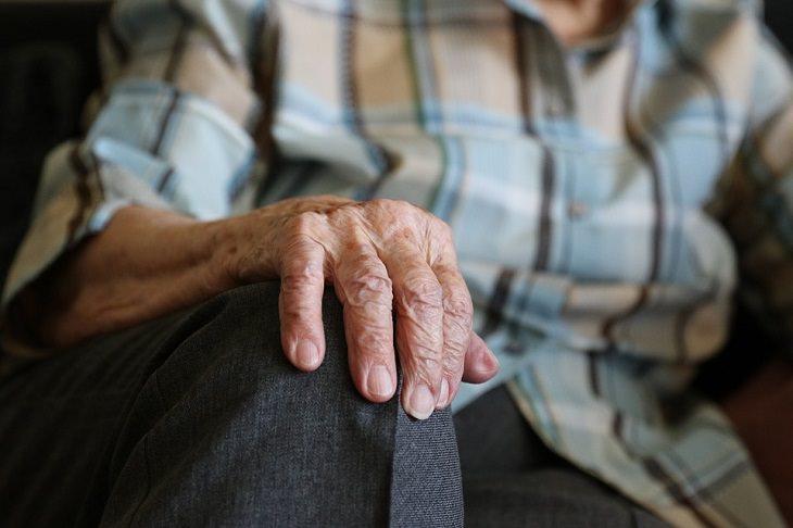 remedios naturales manchas edad