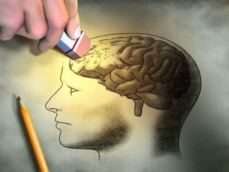 3 cosas que aumentan tu riesgo de demencia