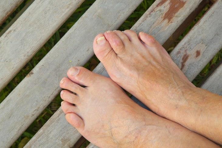 cambios pies al envejecer