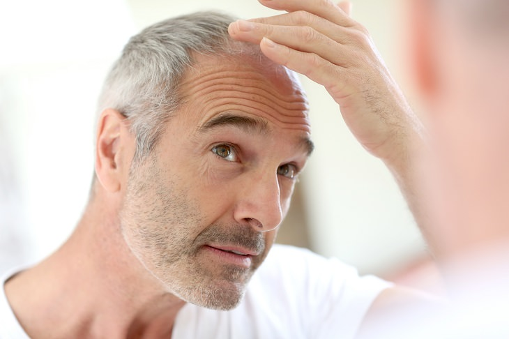 síntomas vitaminas perdida cabello