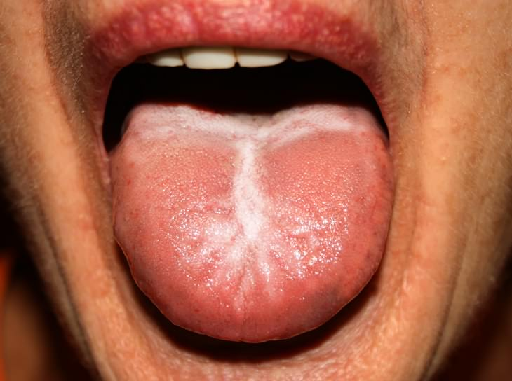 síntomas cándida y tratamiento