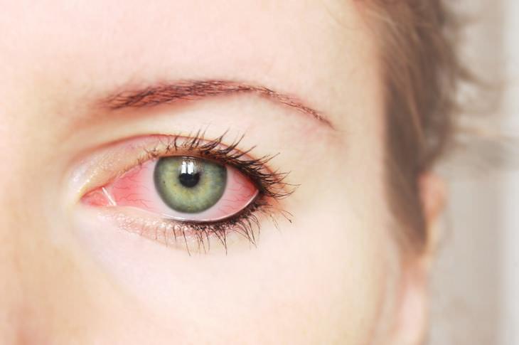 ojos y probemas de salud