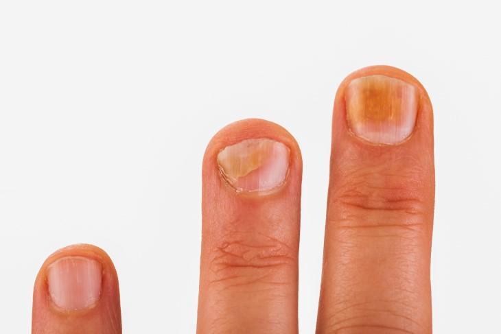 señales uñas