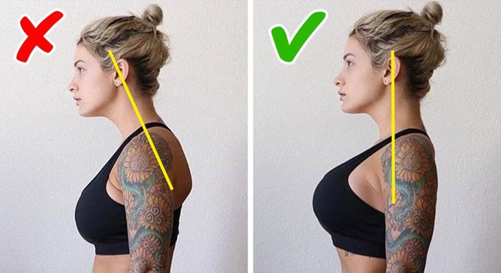 explicación cifosis postural solución