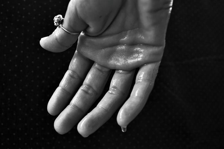 signos enfermedades manos