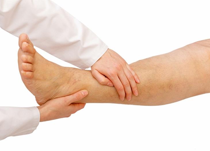 piernas hinchadas consejos