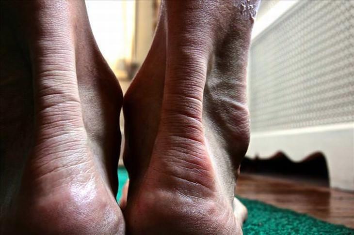 remedios dolor talón