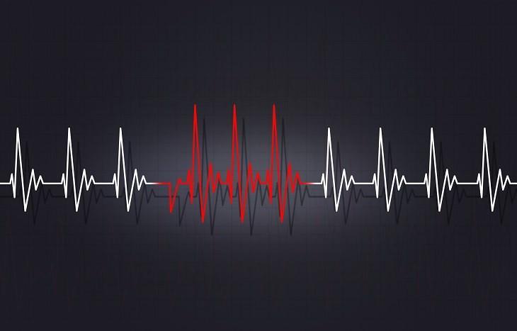Presión Arterial Baja síntomas frecuencia cardiaca