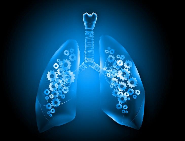 Nuevo Tratamiento Cáncer Pulmón