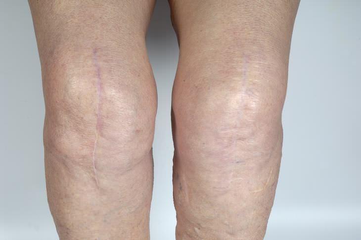 Manchas Blancas en rodillas