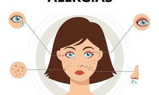7 Posts Alergias