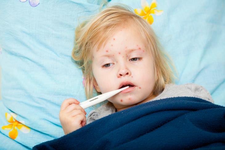 Brotes de sarampión en niños y adultos