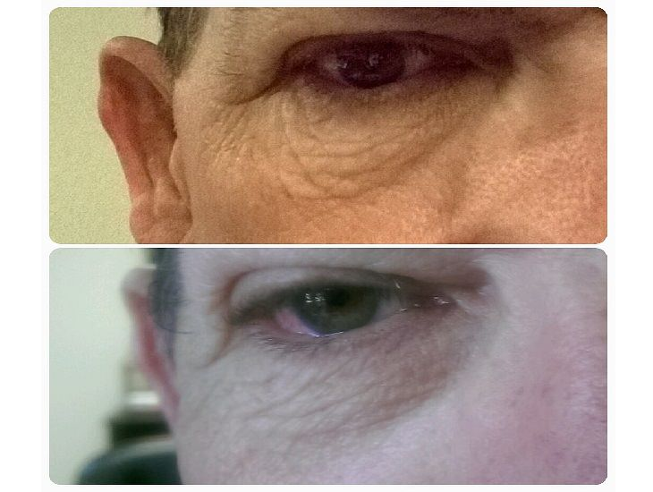 comparativa arrugas ojos