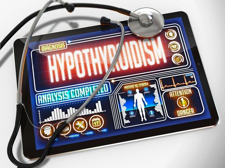 10 signos hipotiroidismo
