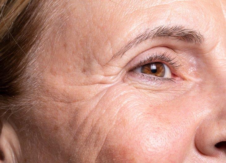 12 hábitos cáncer de piel