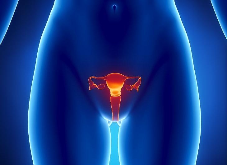 Causas De Ovarios Poliquísticos