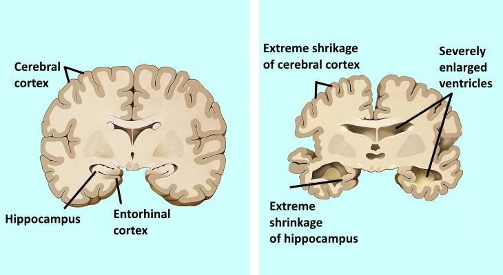Cerebro y Cuerpo