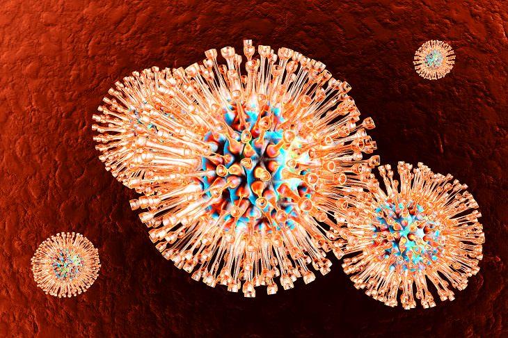 Herpes Labial y Alzheimer