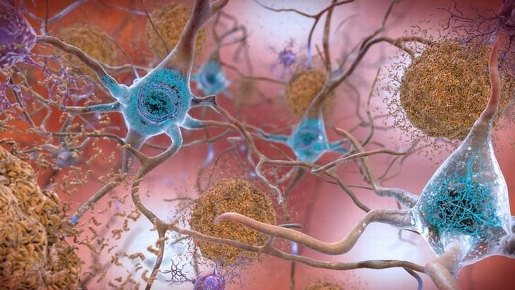 Una ilustración de placas de beta-amiloide y ovillos neurofibrilares en el cerebro