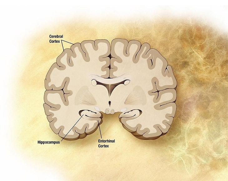 El Efecto Del Alzheimer nuevo medicamento