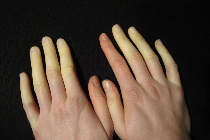 6 Causas Médicas De Los Pies Fríos y Sus Remedios Caseros Problemas de circulación sanguínea