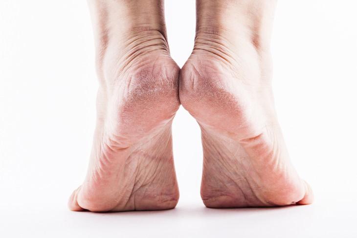 Tratamientos y Consejos para la piel agrietada o seca