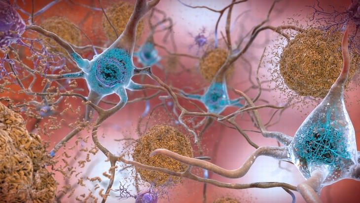 Una ilustración de placas beta-amiloides y enredos de TAU en el cerebro